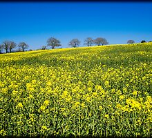 Rapeseed Field (Brassica Napus) by mlphoto