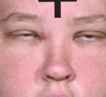 Anti Boo Boo Sticker