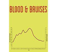 Blood & Bruises Photographic Print