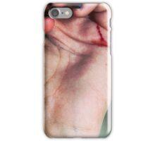 Hand Gesture iPhone Case/Skin