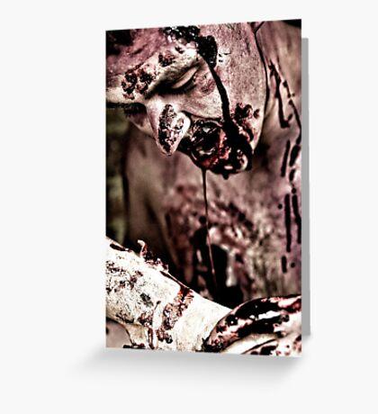 Zombie Boy Greeting Card