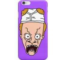BEAVIS iPhone Case/Skin