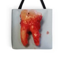 Extracted Tooth Tote Bag