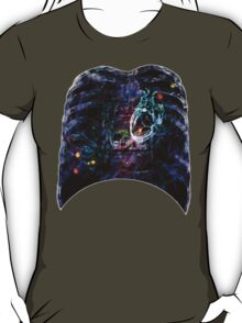 X-ray chest T-Shirt
