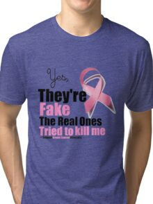 Yes They're fake. My real ones tried to kill me. Tri-blend T-Shirt