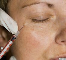 Botox before and after (injection) by KathyWinston