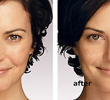 Juvederm before and after by KathyWinston