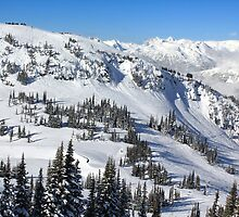 Whistler Ski Slopes by Charles Kosina