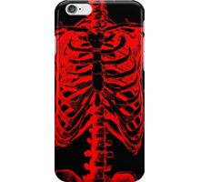 Rib X-ray iPhone Case/Skin