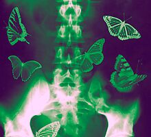 Butterflies in the stomach - x-ray  by PhotoStock-Isra