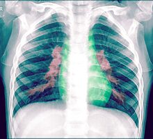 Chest x-ray of a 3 year old female baby by PhotoStock-Isra
