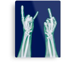 x-ray of a human hand making obscene hand gestures  Metal Print