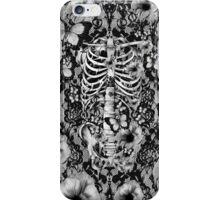 Idiopathic idiot iPhone Case/Skin