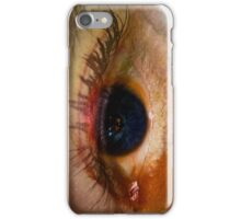 egg-eye sunny side up iPhone Case/Skin