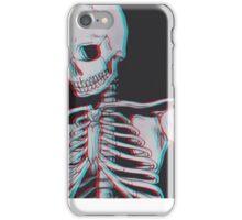white bones iPhone Case/Skin