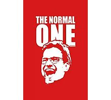 The Normal One Photographic Print