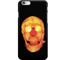The Fall - Cerebral Caustic iPhone Case/Skin