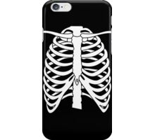 X-ray Chest iPhone Case/Skin