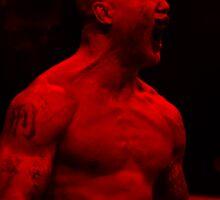 Robbie Lawler UFC Sticker