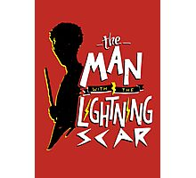 The Man with the Lightning Scar Photographic Print