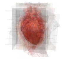 Human Heart Photographic Print