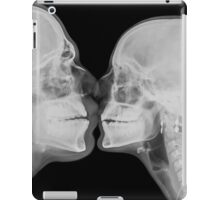 Kissing Couple. Two people kissing under x-ray  iPad Case/Skin