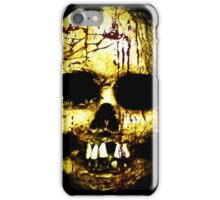 Head of a corpse iPhone Case/Skin