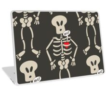 Heart Imprisoned in a Rib Cage Laptop Skin
