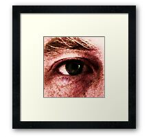 squealshuft eye Framed Print