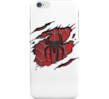 So You're Peter? iPhone Case/Skin