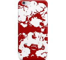 Ziggs Explosion Color iPhone Case/Skin