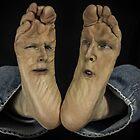 Agony of Da Feet aka Plantar Face-itis by Randy Turnbow