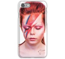 Ziggy iPhone Case/Skin