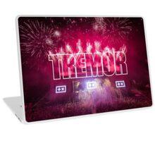 TREMOR Laptop Skin