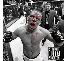 Nate Diaz UFC Fight Photographic Print