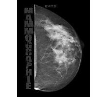 Mammographic Photographic Print