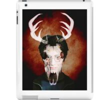 Harry James Potter iPad Case/Skin