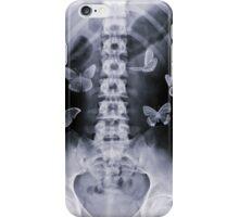 Conceptual Butterflies iPhone Case/Skin