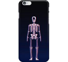 Glitch & Bone iPhone Case/Skin