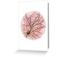 Dendritic tree and spines of an hippocampal neuron - watercolour - Pink Greeting Card