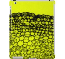 Crowded - Abstract In Black And Yellow iPad Case/Skin