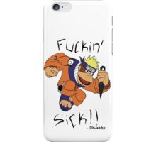 Donkey kong....and naruto THAT WOULD BE F***IN SICK iPhone Case/Skin