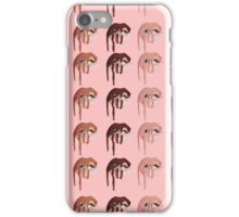 3 Lips iPhone Case/Skin