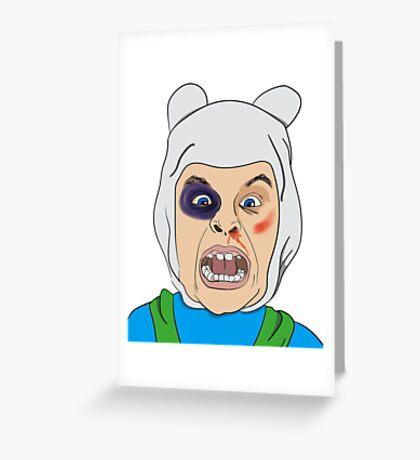 Finn The Human Original Illustration Greeting Card