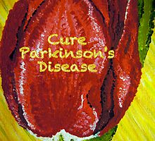 Tulip Painted- Cure Parkinson's Disease by Sacha  Whitehead