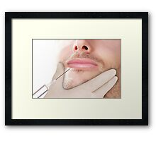 Doctor In glove giving Botox Injection on lips of a man Framed Print