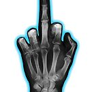 Middle Finger X-Ray by Rev. Shakes Spear