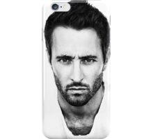 Alex O'Loughlin iPhone Case/Skin