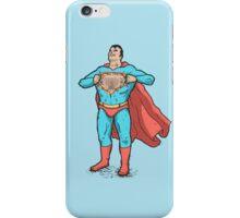 Super Nipples iPhone Case/Skin