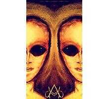 Siamese twins Photographic Print